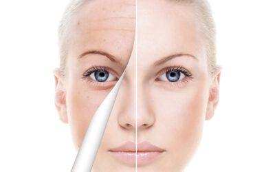 Medical Beauty Teatment